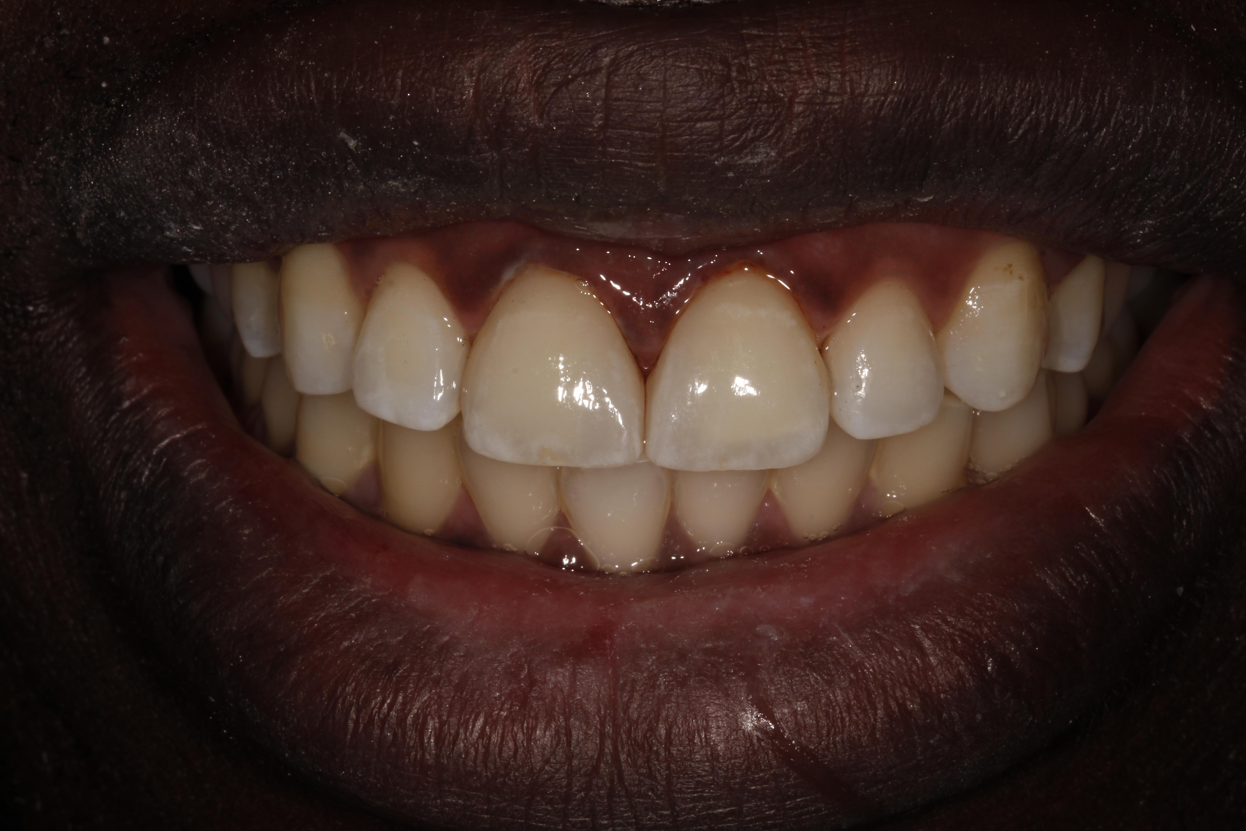 Porcelain Veneers London Dentist