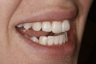Inman Aligners in North London - Teeth After
