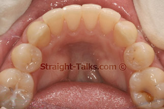 Inman Aligners with Smile Cliniq - Teeth After